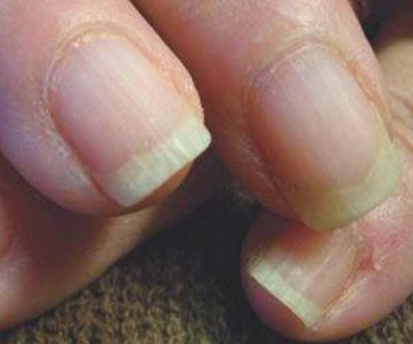 Nail Analysis   Jessica Cosmetics Australia Natural Nail Care